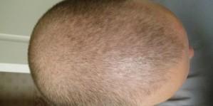 Alopeciaareatadifusa