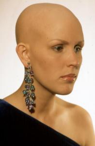 Alopeciatotal