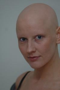 Alopeciauniversal